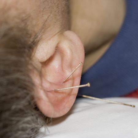 pierced ears: Man with acupuncture needles in his ear - close-up
