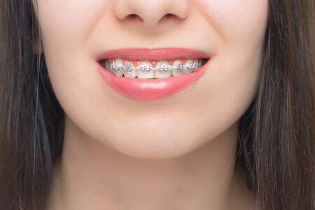 Lächeln der jungen Frau mit Zahnspangen. Brackets an den Zähnen nach dem Bleaching. Selbstligierende Brackets mit Metallbändern und grauen Gummibändern oder Gummibändern. Kieferorthopädische Zahnbehandlung. Standard-Bild