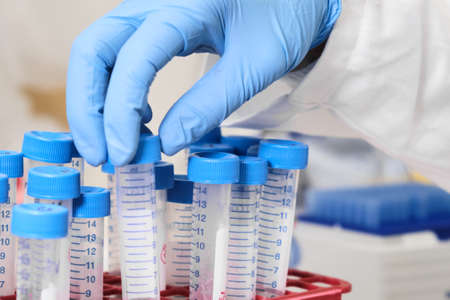 Sample preparation process by analytical chemist. Close up womans hand taking falcone tube and putting it into the rack. Developing of pharmaceuticals or vaccine. Standard-Bild