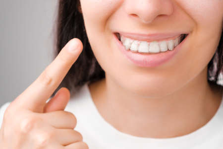 Happy woman with a perfect smile shows with finger on transparent aligners on her teeth