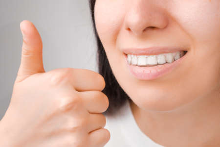 Happy woman with a perfect smile in transparent aligners on her teeth shows Like. Banque d'images