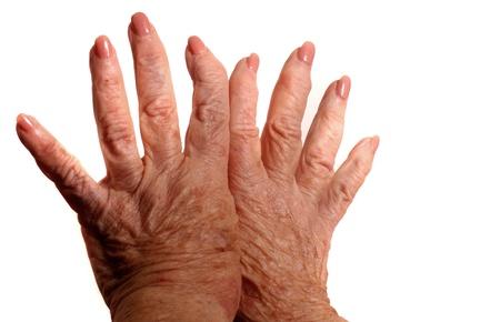Manos con artritis Foto de archivo - 11000845
