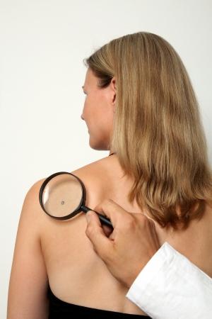 dermatologist: Doctor investigating a birthmark