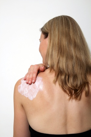 skin cancer: Young woman lotion her left shoulder with suncreme Stock Photo