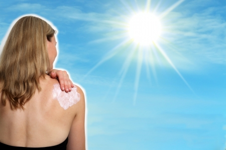 burn: Woman aplicatin sun lotion on her shoulder with sun rays Stock Photo