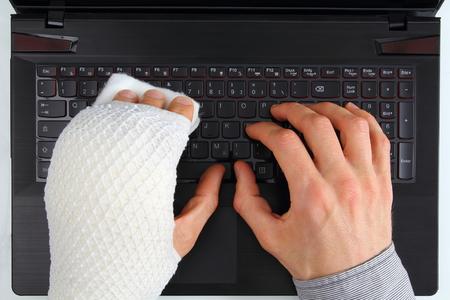 손 부상으로 노트북에서 작업 스톡 콘텐츠