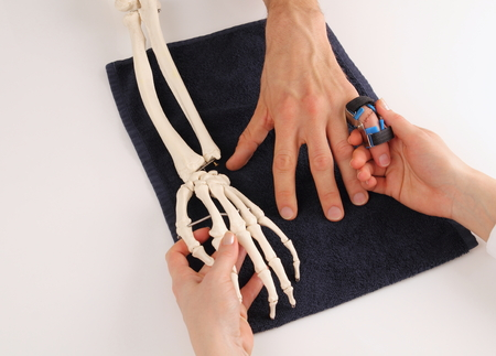 Hand surgeon with skeleton hand at patient photo