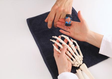Cirujano de la mano explicando un paciente de su lesión Foto de archivo