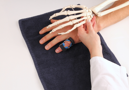 orthopedics: Hand surgeon with skeleton hand at patient Stock Photo