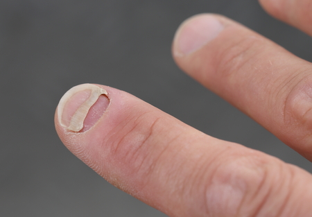 A Patient with nail detachment