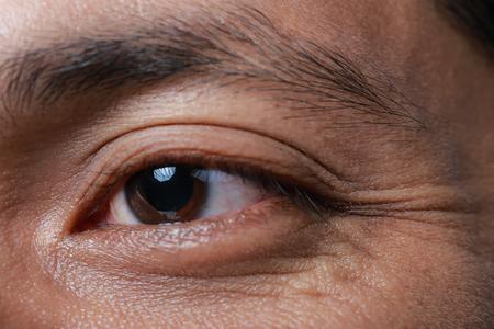 watery: Wrinkles around the eyes