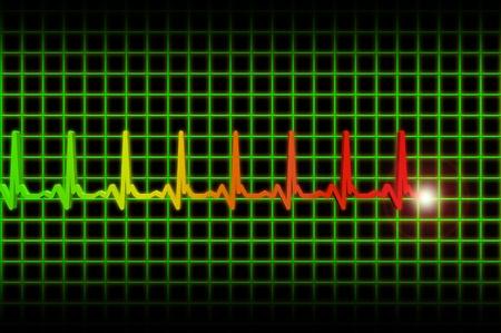 Ekgecg pulse diagram photo