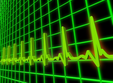 stress test: Ekgecg pulse diagram Stock Photo