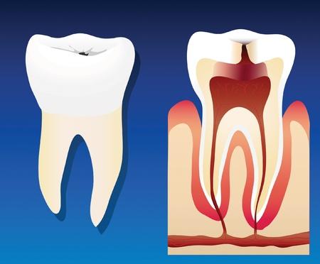 karies: En vektor llustration visar en ohälsosam tand med ett tvärsnitt