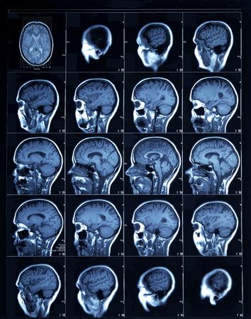 Sección en sección Tomografía computarizada de una cabeza humana, que muestra la corteza cerebral a través de las cavidades sinusales. Foto de archivo