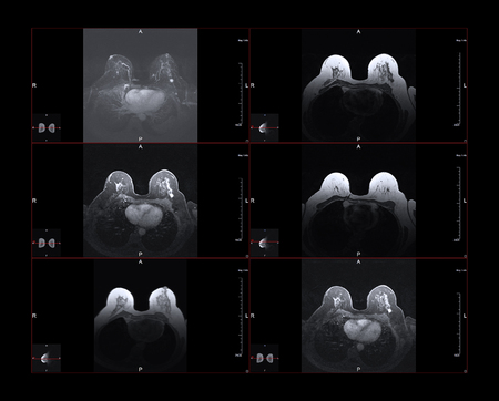 Breast magnetic resonance image, or MRI. The bright white dot in the larger images is Stage One breast cancer. The small images show the position within the body.
