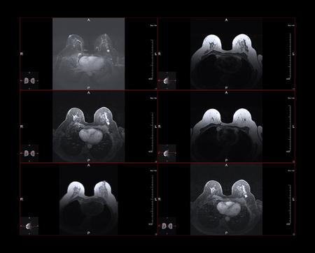 Image de résonance magnétique du sein ou IRM. Le point blanc brillant des grandes images est le cancer du sein de stade 1. Les petites images montrent la position dans le corps.