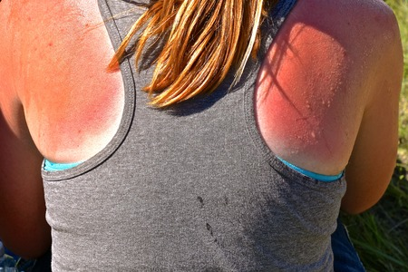 The skin on the shoulders of a girl are fried to a crisp with a deep sunburn.
