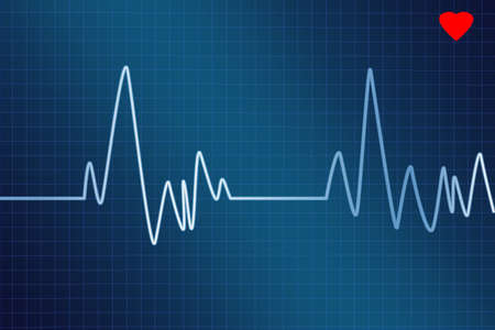electrocardiogram on a graph showing peaks and valleys Stock Photo - 2834680