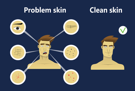 Young man face with different skin problem such as acne, wrinkles, dark spots. Illustration for cosmetic websites, brochures. Facial care concept. Face care for men. Stock Vector - 87270255