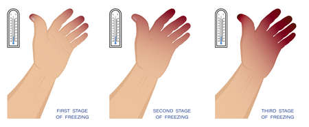 hand of man with different stages of frostbite. Freezing and skin damage in winter in cold air. First aid for hypothermia. Vector
