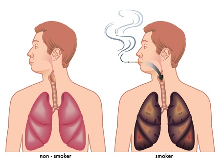 emphysema: Smoking Illustration