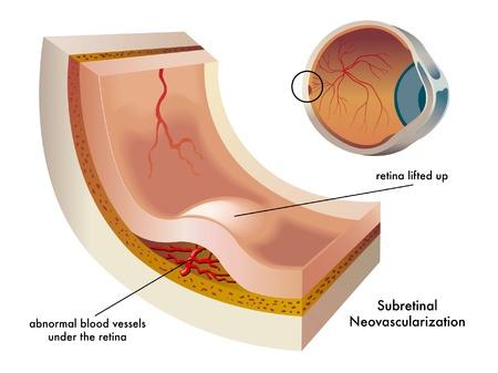 miopia: Neovascolarizzazione sottoretinica Vettoriali