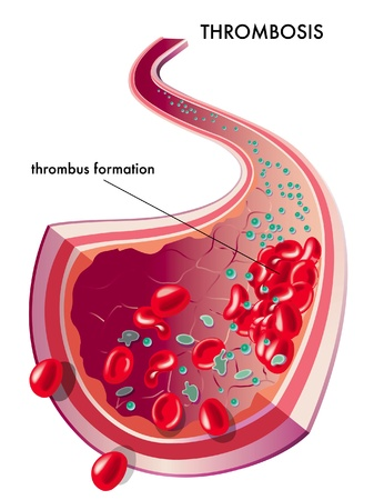 coagulation: Thrombosis