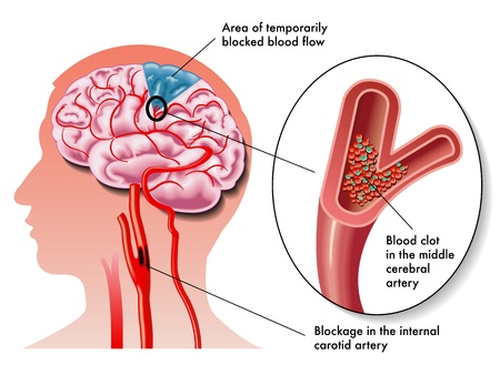 stroke: TIA (transient ischemic attack) Illustration