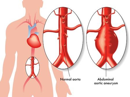 hipertension: Un aneurisma aórtico abdominal