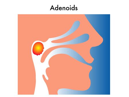 adenoids Stock Vector - 11864430