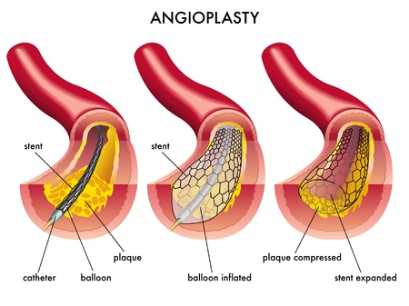 Angioplasty Stock Vector - 12088459