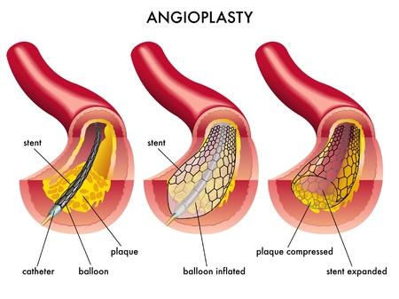 angina: La angioplastia