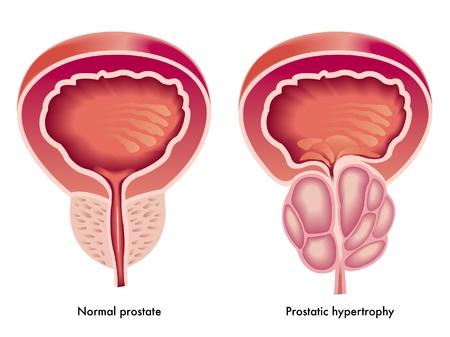Prostaathypertrofie Vector Illustratie
