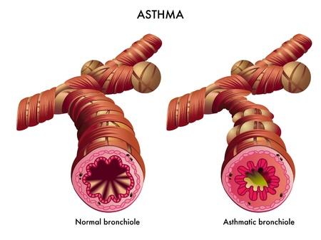 asma: ilustración médica de los efectos de la Asma