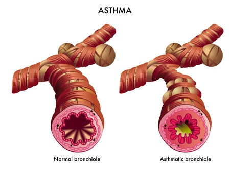 medical illustration of the effects of the Asthma Vector