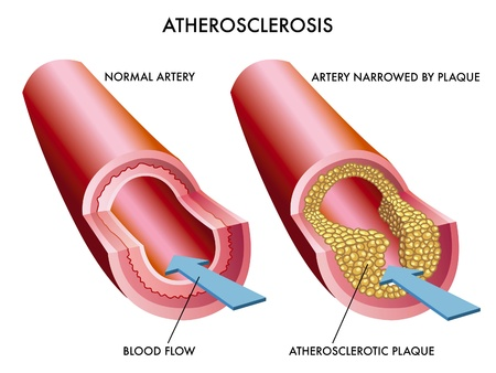 Illustration of the effects of atherosclerosis Stock Vector - 12495347