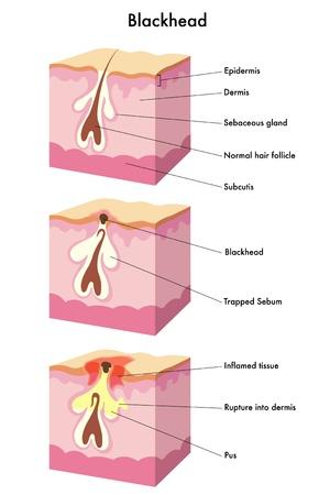 follicle: ilustraci�n m�dica de la formaci�n de puntos negros