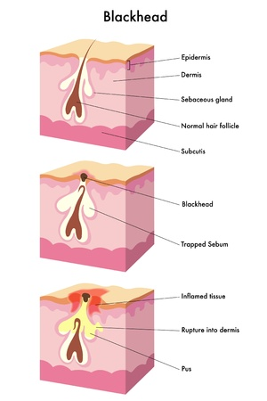 medical illustration of the formation of blackhead Vector