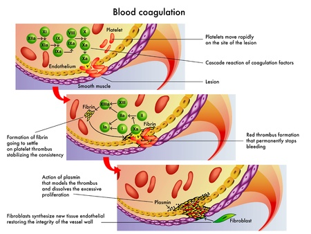 thrombus: medical illustration of the process of blood coagulation Illustration