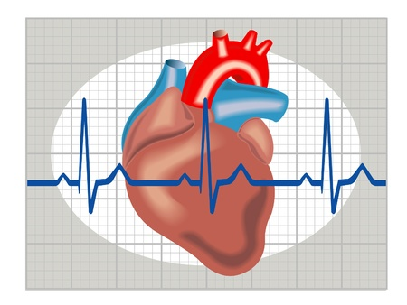Schematic illustration of cardiac arrhythmia Illustration