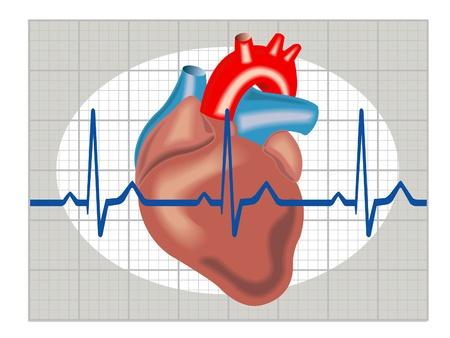 tachycardia: Schematic illustration of cardiac arrhythmia Illustration