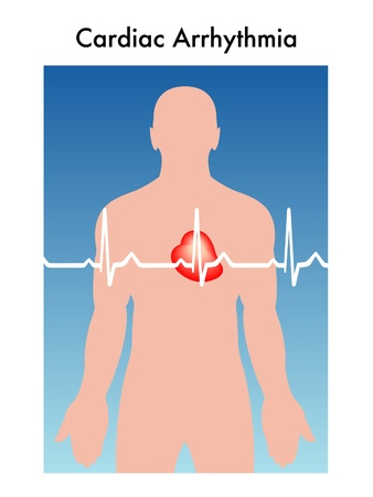 infarctus: Illustration sch�matique de l'arythmie cardiaque Illustration