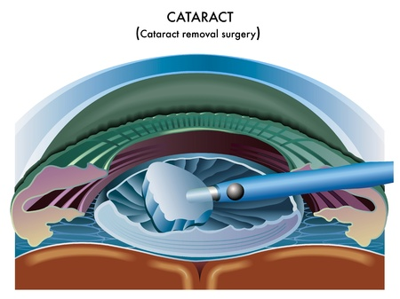 cornea: Cataract
