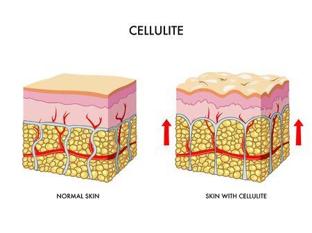 cellulit: cellulit Illusztráció
