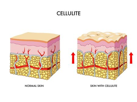 subcutaneous: cellulite Illustration