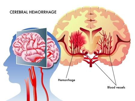beroerte: Hersenbloeding Stock Illustratie