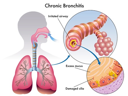 emphysema: Chronic bronchitis Illustration