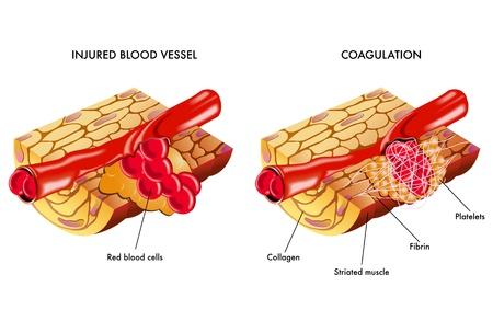 vasos sanguineos: Coagulaci�n de la sangre Vectores