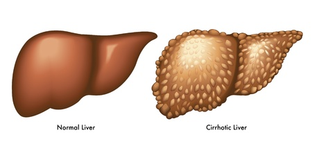 pathology: Cirrhosis